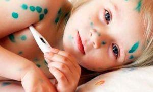Первые симптомы и лечение ветрянки у детей