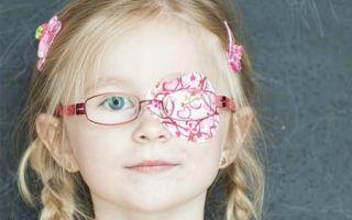Симптомы и лечение детской амблиопии