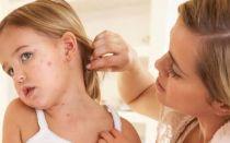 Как лечить лишай у ребенка