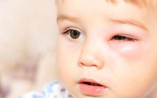 Отек Квинке у детей, симптомы заболевания, лечение и первая помощь