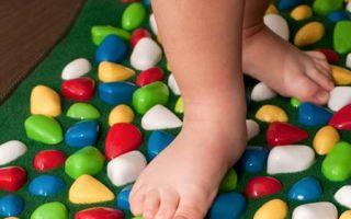 Плоскостопие у детей, профилактика и причины возникновения
