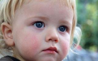 Диатез у детей, его виды, методы лечения и профилактика заболевания