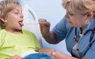 Как и чем лечить скарлатину у детей