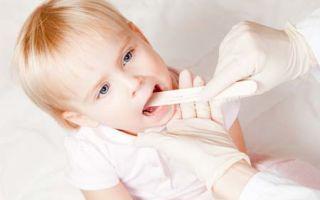 Лечение и профилактика ларингита у детей