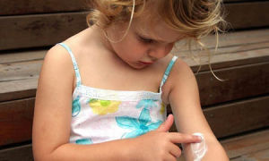 Крапивница у детей её симптомы, виды и методы лечения