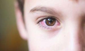 Конъюнктивит у ребенка, как и чем лечить малыша