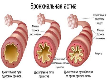 Причины развития бронхиальной астмы у ребенка