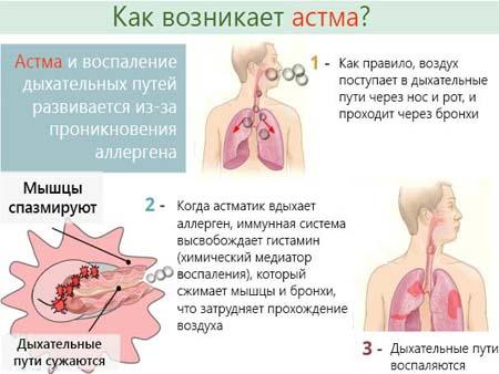 Первые симптомы проявления бронхиальной астмы