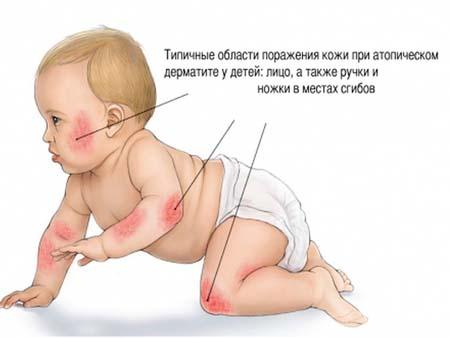 Классификация типов дерматита у детей