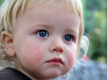 Диатез у детей, симптомы, диагностика, профилактика, лечение