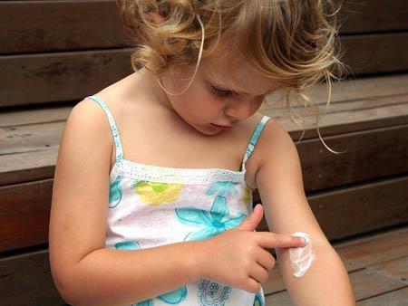 Лечение крапивницы у детей