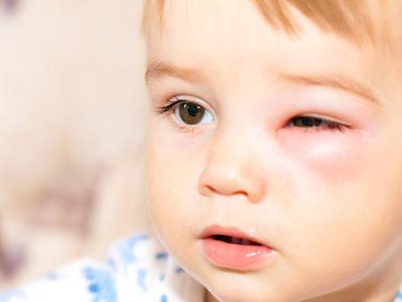 Отек Квинке у детей, симптомы и лечение