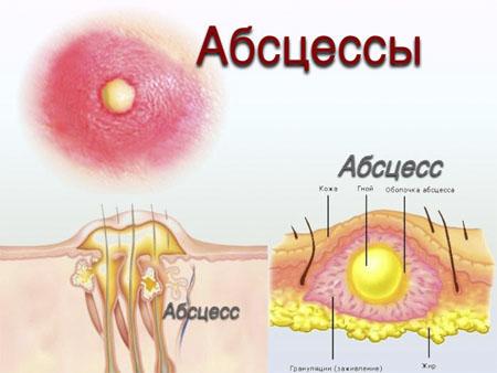Стадии протекания стрептодермии