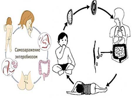 Признаки энтеробиоза у детей