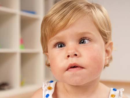 Причины развития детского косоглазия