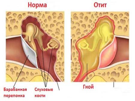 Причины воспаления уха у детей