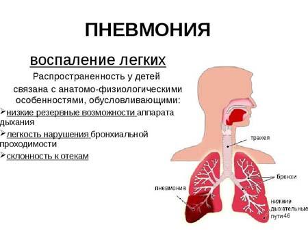 Причины воспаления лёгких
