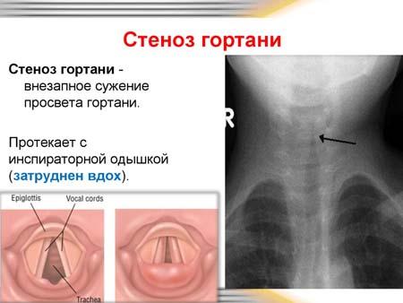 Диагностика стеноза гортани