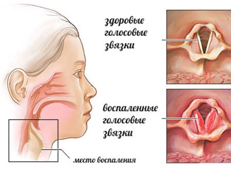 Причины стеноза гортани у ребенка