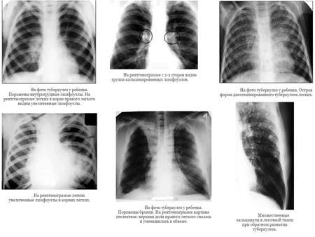 Диагностика туберкулёза у детей