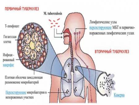 Основные формы туберкулёза у детей